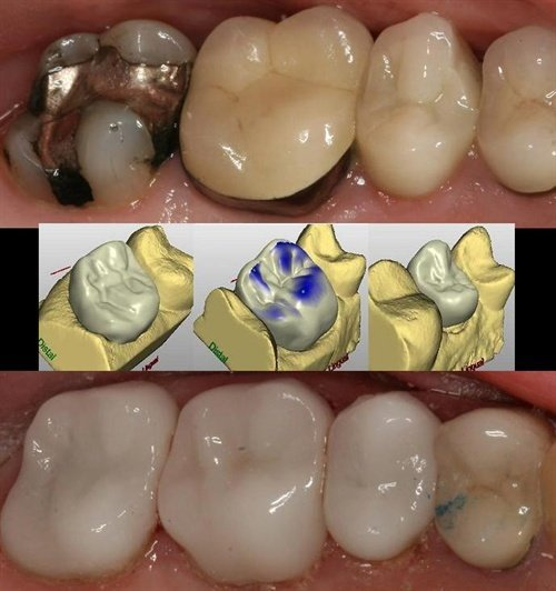 Cerec one appointment crowns